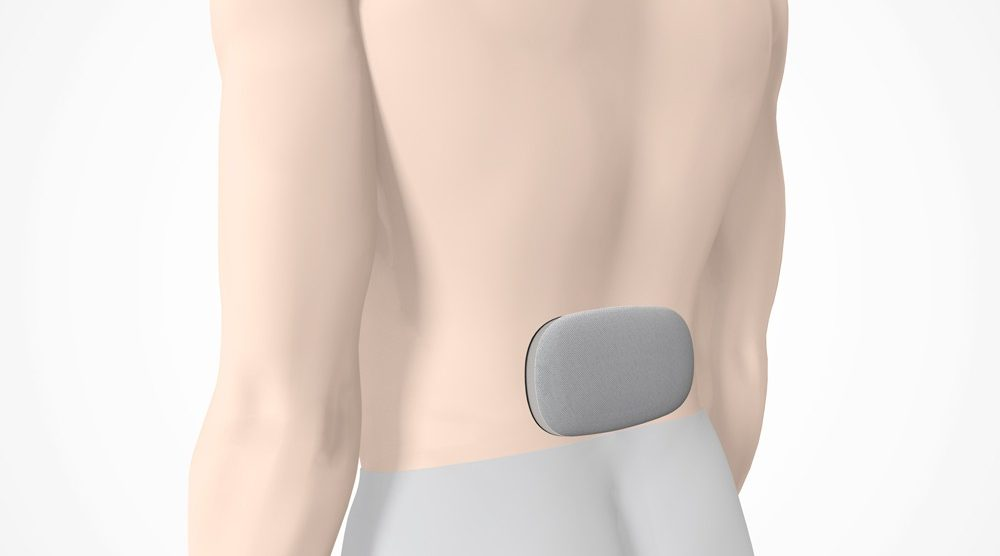 Das moio.care Sensormodul in er Pflastertasche am unteren Rücken eines Patienten.
